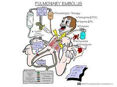 Nursing School: Medical Surgical Nursing Mnemonics Pulmonary embolism
