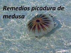 Picadura de medusa, ¿Que tenemos que hacer?
