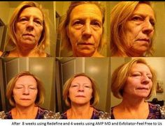 Before and after pictures! Redefine regimen..... Truly amazing. I use this and I LOVE IT! http://lbenner.myrandf.com