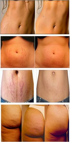 Stretch marks are caused by a rapid stretching of your skin and is often the result of rapid growth, pregnancy weight gain or weight . Stretch Marks On Thighs, Pregnancy Weight Gain, Pregnancy Tips, How To Fade, Cellulite Remedies, Weight Loss Before, Tips Belleza, Beauty Recipe, Health Tips
