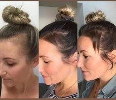 Here you can see a happy Nutriol Shampoo user's results 🤗👏🏻❤️👇🏼 Nutriol Shampoo, Excessive Hair Loss, Hair Growth Cycle, Greasy Hair Hairstyles, Hair System, Monat Hair, Hair Loss Women, Prevent Hair Loss, Hair Loss Treatment