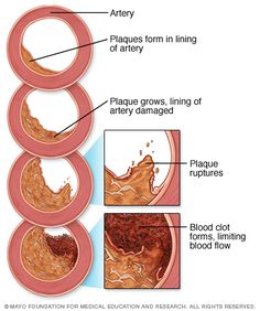 #Atherosclerosis is a process in which blood, fats such as cholesterol, and other substances build up on your artery walls. Eventually, deposits called plaques may form. The deposits may narrow — or block — your arteries. These plaques can also rupture, causing a blood clot.