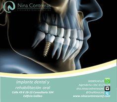 Vuelve a Sonreír! Recupera la función masticatoria devolviendo la naturalidad a tu sonrisa a través de los implantes dentales. http://ninacontrerascmf.com/location/