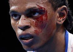 Seychelles' Andrique Allisop watches as he fights Ireland's...