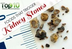 10 Foods that Trigger Kidney Stones