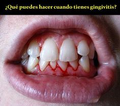 ¿Qué puedes hacer cuando tienes gingivitis?   OdontoFarma