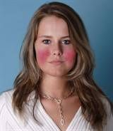 rosy cheeks making you feel less than jolly? Rosacea doesn't have to ruin the holiday season. Try these 5 simple natural remedies… Ocular Rosacea, Acne Rosacea, Natural Remedies For Rosacea, Rosacea Remedies, Best Facial Cleanser, Facial Cleansers, How To Treat Rosacea, Health Tips, Home Remedies