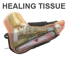BFST promotes blood flow to heal your Plantar Fasciitis quickly