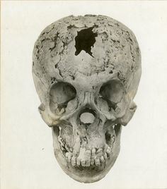 Two Of The Most Dedicated Wax Museums Of Anatomical Anomalies Are - Syphilis map us circa 1700s