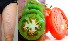 Tomaten zur Linderung der Schmerzen bei Krampfadern