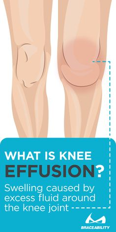 To put it simply, effusion of the knee is the escape of fluid into the tissue. This occurs when excess fluid accumulates in or around the knee joint. When a joint is affected by arthritis, for example, abnormal amounts of fluid can build up causing the kn Fluid On The Knee, Knee Strengthening Exercises, Exercises For Knee Fat, Quad Exercises, Knee Stretches, Knee Arthritis, Rheumatoid Arthritis, Arthritis Exercises, Arthritis Remedies