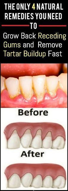 There are a lot of reasons why gums recede and it can become quite a health problem if this happens. If you are experiencing receding gums then you have found a great article to read. In this article you will find 4 of the best home natural remedies to he Teeth Health, Healthy Teeth, Dental Health, Gum Health, Oral Health, Dental Care, Grow Back Receding Gums, Health Tips, Health And Wellness