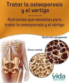 Cómo tratar la osteoporosis y el vértigo.