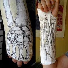 Arm And Leg Cast Artwork