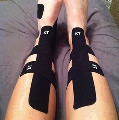 One of amazing benefits of kinesiology tape is to help people with shin splints #shinsplints #injury #KTtape