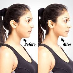 Get Rid Of Double Chin Forever With This Simple Trick – All You Need Is One…
