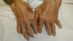 Fat may trigger rheumatoid arthritis