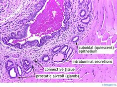 normal prostate histology