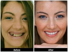 Cosmetic Dentistry with Dental Implants ROCK!!!   #CosmeticDentistry #DentalImplants #Dentist #Dentistry #Dentaltown #DentalPatientEducationIdeas