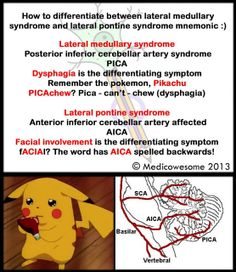 Lateral medullary syndrome and lateral pontine syndrome mnemonic
