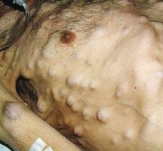 elephantiasis nostras verrucosa — nejm | krankheiten -- jigger, Skeleton