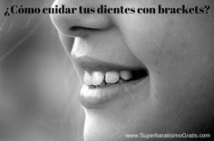 ¿Cómo cuidar y cepillar tus dientes con brackets? | Súper Baratísimo o Gratis