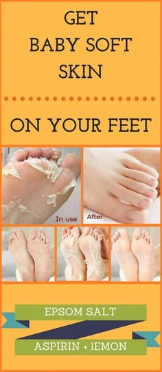 basic homemade recipe for removing dead and dry skin from feet. This will peel o… basic homemade recipe for removing dead and dry skin from feet. This will peel off and remove the dried layer and make your skin baby soft and fair. Organic Skin Care, Natural Skin Care, Natural Beauty, Natural Face, Organic Beauty, Organic Facial, Natural Oil, Organic Makeup, Beauty Care