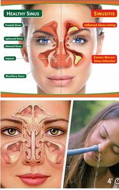 Sinusitis Ubicación Maxillary Sinus, Sinus Infection, Natural Healing, Health Tips, Healthy, Paranasal Sinuses, Oil, Health, Healthy Lifestyle Tips
