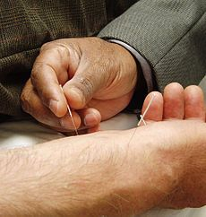 It is important to find a good Traditional Chinese Medicine and Acupuncture Practitioner.