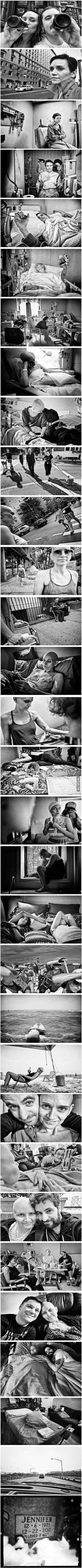 Photographer takes a picture every stage his girlfriend went through in her battle with cancer