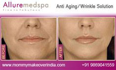 Mommymakeoverindia.com is leading Cosmetic Skin Treatment Center Offering various skin treatments at affordable cost by best Cosmetic Surgeon/Doctor Dr. Milan Doshi in Mumbai, India.