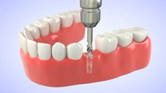 Dental Implant in United Kingdom
