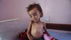 De humanitaire hongersnood is nu al een paar jaar aan de gang in Jemen. Mensen in Jemen verhongeren niet, ze worden uitgehongerd. Dit wordt nu pas echt bekend bij de mensen door de vele foto's die de ronde doen over de magere kinderen op een bed. Radio 1 doet daarom een oproep om massaal 1 euro te doneren om deze kinderen te helpen.