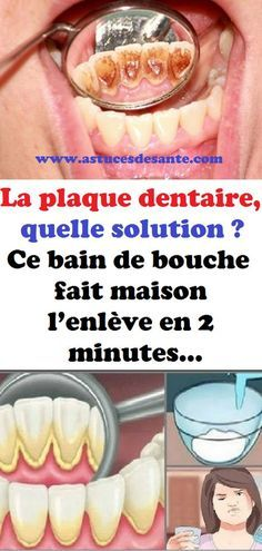 La plaque dentaire, quelle solution ? Ce bain de bouche fait maison l'enlève en 2 minutes… #plaquedentaire #dents #baindebouche #remède #astucesbeauté Hygiene, Solution, Plaque, Vegetables, Health, Food, Mary, Sports, Baking Soda