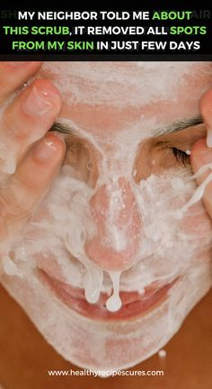 How to Take out Black Spots on Face in a single Working day #BestCreamForBrownSpots Sun Spots On Skin, Black Spots On Face, Brown Spots On Hands, Spots On Legs, Dark Spots, Sunspots On Face, Spots On Forehead, Dark Under Eye, Best Anti Aging