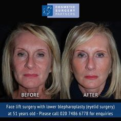 Face lift surgery and lower blepharoplasty (eyelid surgery) with Cosmetic Surgery Partners London clinic – Call 020 7486 6778 for enquiries #facelift #faceliftsurgery #faceliftLondon #faceliftsurgeryLondon #faceliftbeforeandafter #faceliftbeforeandafterpictures #faceliftpatient #blepharoplasty #eyelidsurgery #lowereyelidsurgery #blepharoplastyLondon #eyelidsurgeryLondon #blepharoplastysurgeon #eyelidsurgeon #blepharoplastyresults #blepharoplastybeforeandafterphotos #cosmeticsurgeryLondon #co Facelift Before And After, Facial Cosmetic Surgery, Eyelid Lift, Eyelid Surgery, Botox Injections, Return To Work, Rhinoplasty, Jawline, Clinic