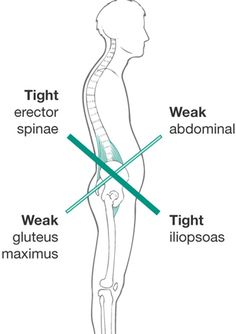 Janda described lower crossed syndrome to explain how certain muscle groups in the lumbopelvic area get tight, while the antagonists get weak or inhibited
