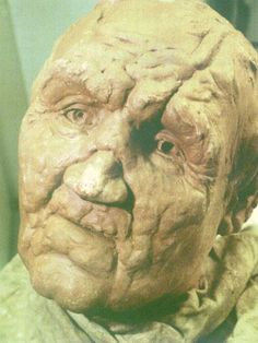 This is a forensic reconstruction of Robert the Bruces' face. It was made from a plaster cast taken of the Kings skull after death. It was thought he was a leper, however it is now believed he suffered some other kind of disease. He was also covered in battle scars.