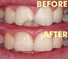 Before & After Cosmetic Dentistry! Fix your smile today!