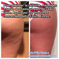 Furthermore, you can likewise develop cellulite if you don't work out enough or if you do not enjoy what you consume really carefully. Food rich in carbs, fats, and low-fiber food boost fat storage in the body and triggers cellulite. Causes Of Cellulite, Cellulite Scrub, Cellulite Remedies, Cellulite Exercises, Cellulite Cream, Skin Care Regimen, Skin Care Tips, Get Rid Of Pores, Rhassoul