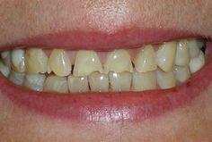 tooth erosion tooth enamel