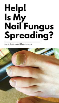 Can Toenail Fungus Spread To Other Parts Of The Body? Fingernail Fungus, Fungal Nail Infection, Listerine Mouthwash, People With Hiv, Arthritis Pain Relief, Healthy Nails, Body Parts