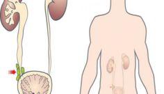 احتقان البروستاتا وأعراضه وعلاجة ونصائح هامة