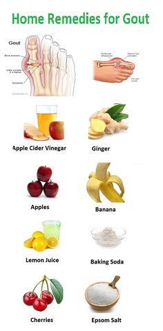 These are the most common, natural and effective home remedies that treat gout. Follow these to get relief from gout