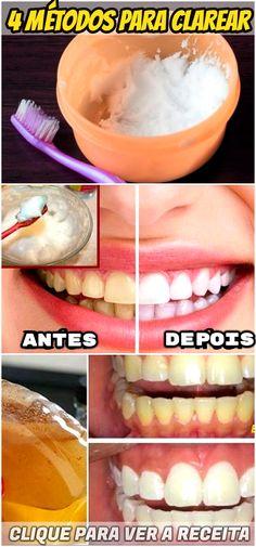 Trouxemos misturas que irão ajudá-lo a clarear os dentes em casa sem gastar muito e com resultado impressionante. #clareamento #dental #caseiro #dentario #dente #clareardentes #dicas #caseiras #receitas #boca