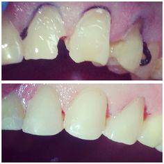 Стоимость работы за 1 единицу 3500 #всемздорья #виниры by dentistrymylife
