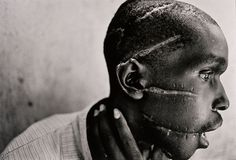 Man mutilated Rwanda    World Press Photo of the Year: 1994 James Nachtwey, USA, Magnum Photos for Time. Rwanda, June 1994. Hutu man mutilated by the Hutu 'Interahamwe' militia, who suspected him of sympathizing with the Tutsi rebels.