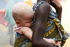 Albino children are being murderd in Tanzania Africa by witch doctors. Please pin this to get people talking. Such a beautiful little girl she deserves to love without fear.