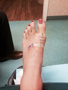 My bunionectomy experience: Week 4 Toe Numbness, Bunion Remedies, Get Rid Of Bunions, Actress Feet, Bunion Surgery, Bunion Shoes, Hammer Toe, Indian Jewelry Sets, Surgery Recovery