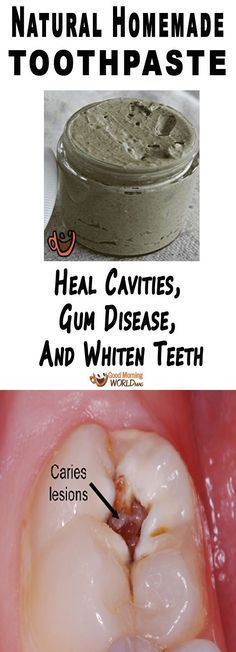 Heal Cavities, Gum Disease, And Whiten Teeth With This Natural Homemade Toothpaste!